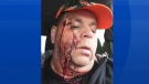 Douglas Lyons is shown after being shot in the face in this recent handout photo from Facebook. A New Brunswick restaurateur has survived after being shot in the face by a misfiring rifle. (THE CANADIAN PRESS/HO - Facebook, Douglas Lyons)